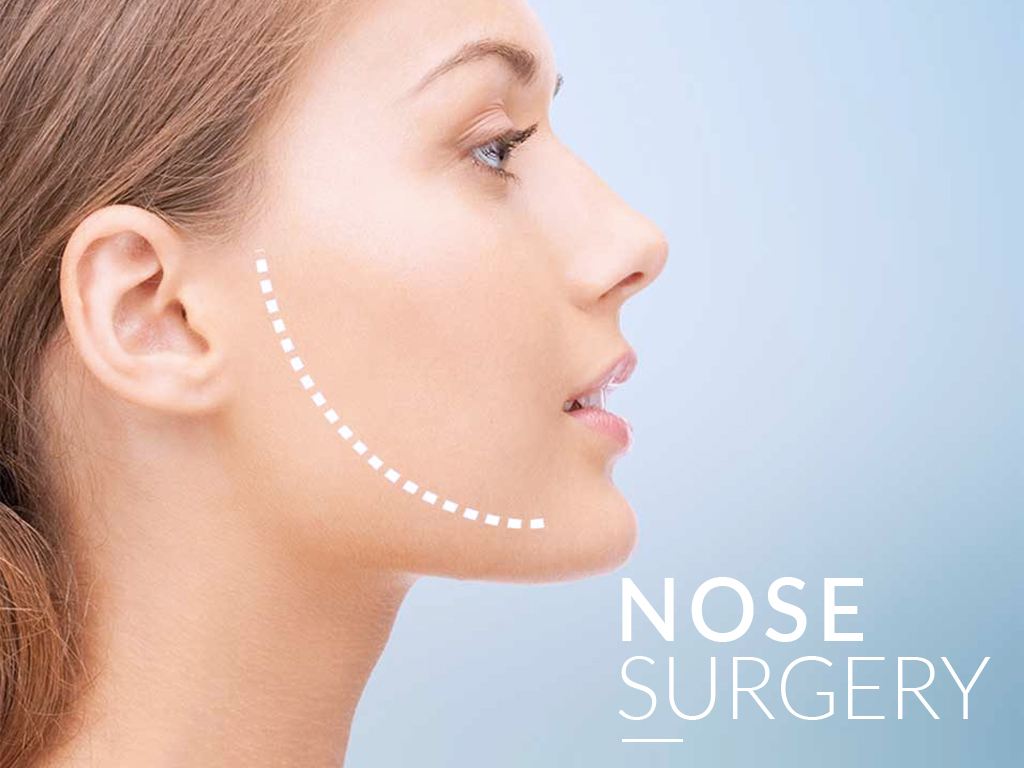 In Tijuana, Mexico rhinoplasty or nose surgery on improving and enhancing the appeal of the face.