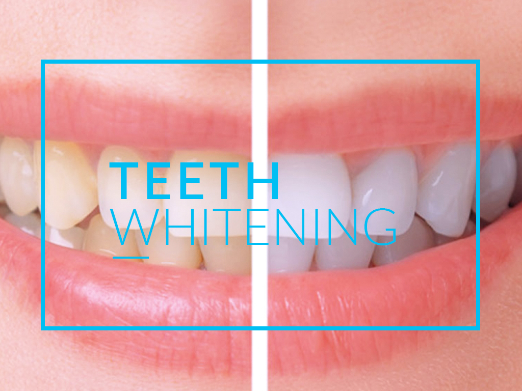 In Tijuana, Mexico teeth whitening to greatly improve your smile.