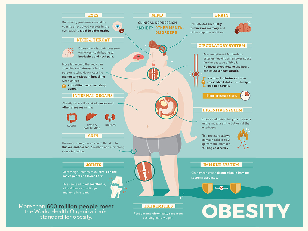 What Is Obesity Overview Of Obesity Blue Guys News