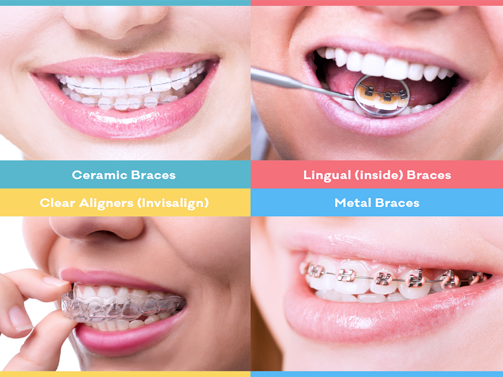 Alternative orthodontic treatment options, to correct teeth and jaws, now include Clear or Tooth Colored Ceramic Braces, Lingual (inside) braces and Clear Aligners.
